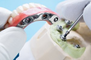 Dental implant work is completed and ready to use/ dental implant temporary abutment | displaying the type of implant